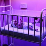 A jaundiced baby in an old baby cot undergoing treatment under a Phototherapy Machine existed since 1979